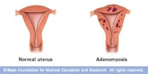 adénomyose pointgyn